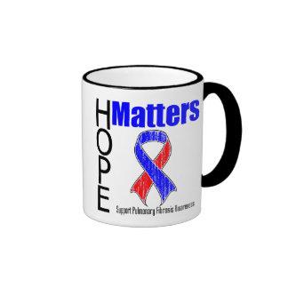 La esperanza importa fibrosis pulmonar de la cinta tazas de café