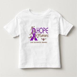 La esperanza importa malformación de 3 Chiari Playera De Bebé