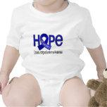 La esperanza importa síndrome crónico del cansanci trajes de bebé