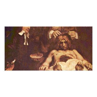 La lección de la anatomía del Dr. Joan Deyman. Por Tarjetas Fotográficas