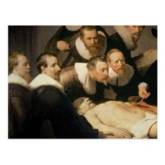 La lección de la anatomía del Dr. Nicolaes Tulp, 1 Tarjeta Postal