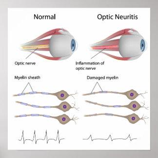 La neuritis óptica observa el poster
