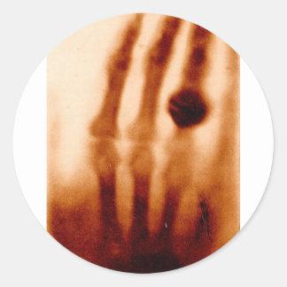 La primera X-Ray, 1901, fotografía Pegatina Redonda