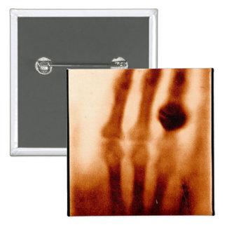 La primera X-Ray, 1901, fotografía Pin Cuadrado