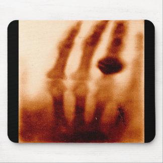 La primera X-Ray 1901 fotografía Alfombrillas De Ratón