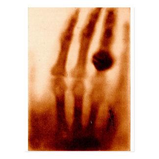 La primera X-Ray, 1901, fotografía Postales
