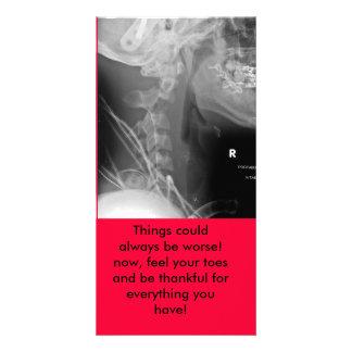 ¡la radiografía, cosas podía siempre ser peor! aho tarjeta fotográfica personalizada