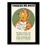 La tuberculosis no me besa bebé tarjetas postales