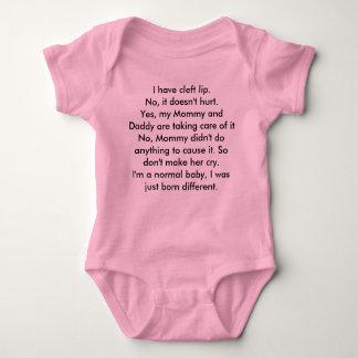 Labio leporino body para bebé