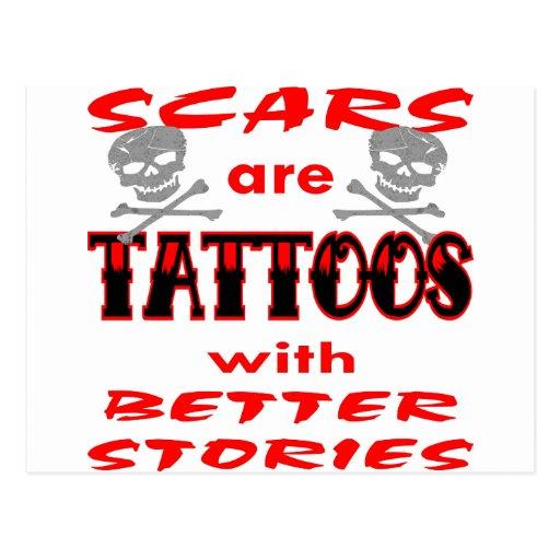 Las cicatrices son tatuajes con mejores historias postal