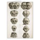 Las deformidades infantiles del cráneo extrañas/Co Tarjeta