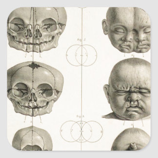 Las deformidades infantiles del cráneo calcomania cuadrada personalizada