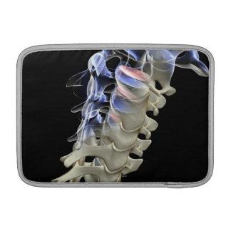 Las vértebras cervicales 2 fundas para macbook air
