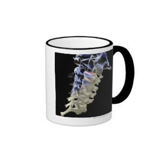 Las vértebras cervicales 2 taza de dos colores