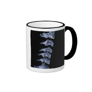 Las vértebras cervicales 6 taza de café