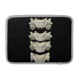 Las vértebras cervicales 7 fundas MacBook