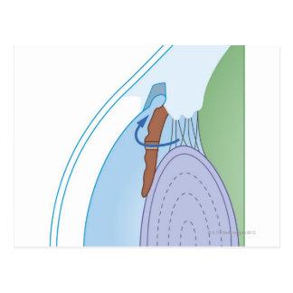 Laser Iridectomy Treatment Postcard