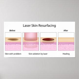Laser skin resurfacing procedure poster