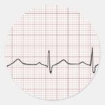 Latido del corazón en el papel cuadriculado, golpe etiquetas
