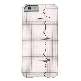 Latido del corazón en el papel cuadriculado, pulso funda barely there iPhone 6