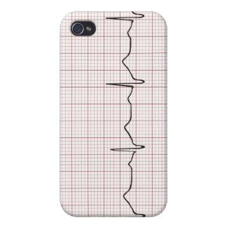 Latido del corazón en el papel cuadriculado, pulso iPhone 4 carcasas