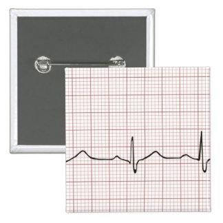 Latido del corazón en el papel cuadriculado, pulso pins