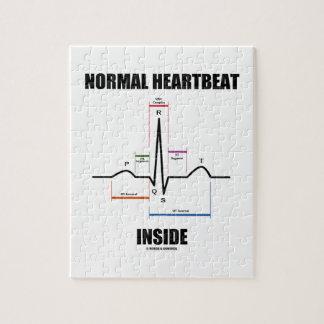 Latido del corazón normal dentro del puzzle