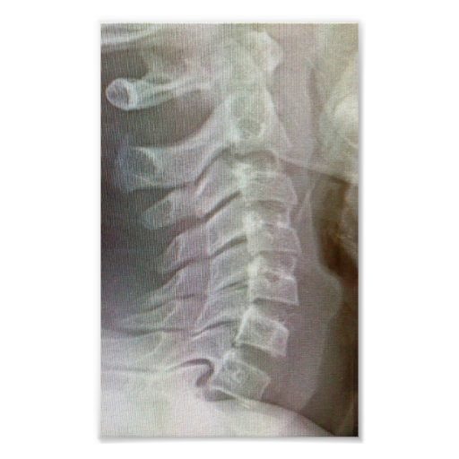 Lazo cervical de la espina dorsal impresiones