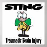 Lesión cerebral traumática de STING Poster