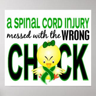 Lesión de la médula espinal ensuciada con el póster