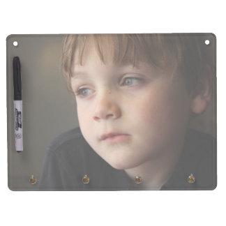 Lightened Photo Dry Erase Board