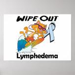 Limpie hacia fuera Lymphedema Impresiones