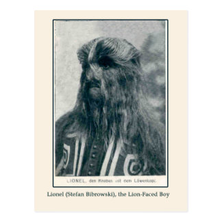 Lionel, the Lion Faced Boy Cards and Postcards