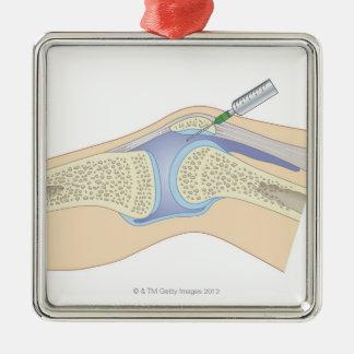 Líquido sinovial de la rodilla adorno navideño cuadrado de metal