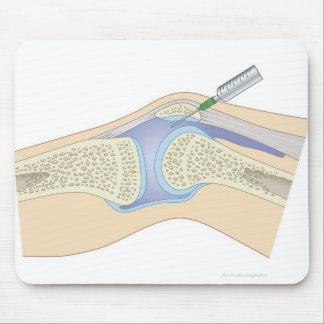 Líquido sinovial de la rodilla alfombrillas de ratones
