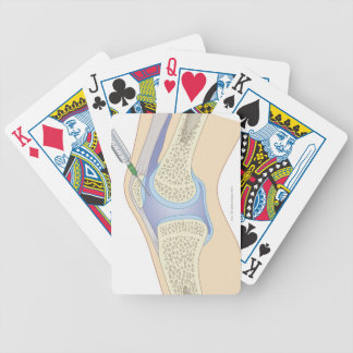 Líquido sinovial de la rodilla barajas de cartas