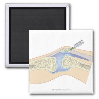 Líquido sinovial de la rodilla imán cuadrado
