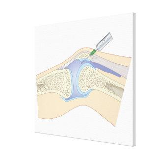 Líquido sinovial de la rodilla impresión en tela