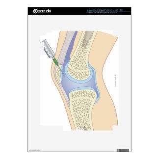 Líquido sinovial de la rodilla iPad 3 skins
