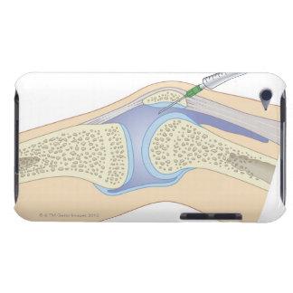 Líquido sinovial de la rodilla iPod touch Case-Mate cobertura