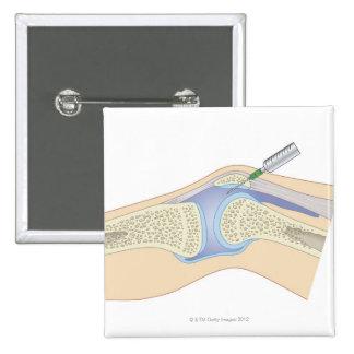 Líquido sinovial de la rodilla pin cuadrado