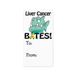 Liver Cancer BITES Label