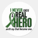 Liver Cancer NEVER KNEW A HERO 2 Dad Sticker