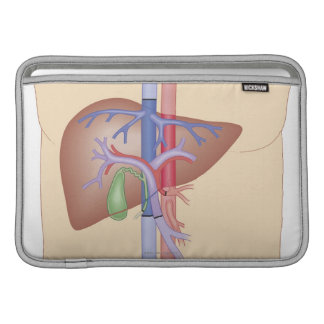 Liver Transplant Procedure MacBook Air Sleeve
