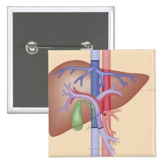 Liver Transplant Procedure Pinback Button