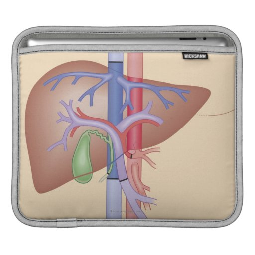 Liver Transplant Procedure Sleeves For iPads