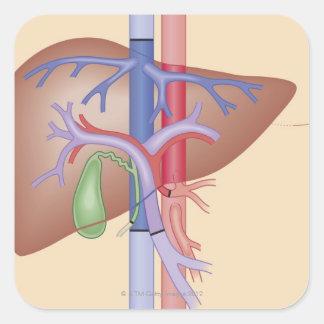 Liver Transplant Procedure Square Sticker