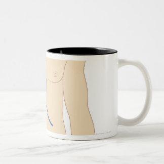 Liver Transplant Two-Tone Coffee Mug
