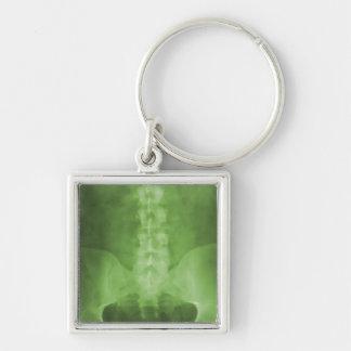 Llavero verde del arte de la radiografía de Digita