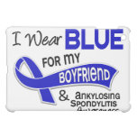Llevo al novio azul 42 Spondylitis Ankylosing COMO